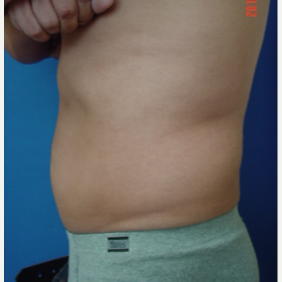 Liposuction Mid-section before 3103663