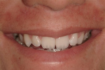Porcelain Veneers before 192542