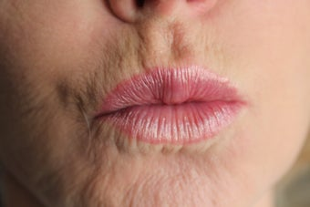 60 year old Female lips treated with Juvederm and Botox 823735