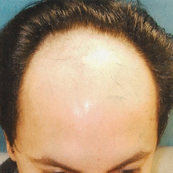 25-34 year old man treated with Hair Transplant before 3495001