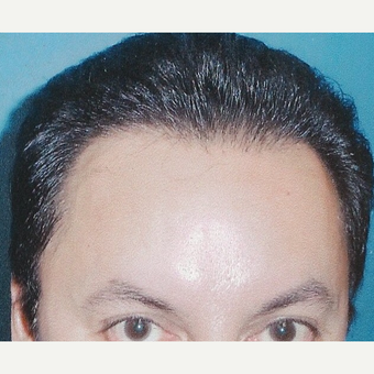 25-34 year old man treated with Hair Transplant after 3495001