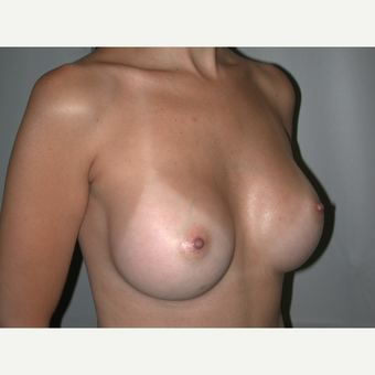 25-34 year old woman treated with Breast Augmentation after 3765893