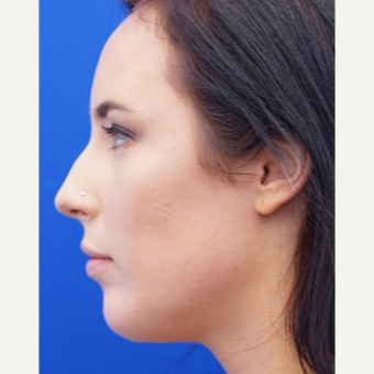 25-34 year old woman treated with Chin Implant after 3719111