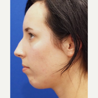 25-34 year old woman treated with Chin Implant before 3719111