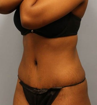Tummy Tuck with Liposuction 2218116