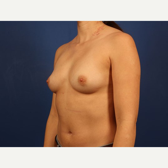 Breast Augmentation before 3744121