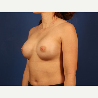 Breast Augmentation after 3744121