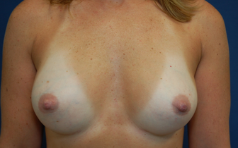 Gummy Bear Breast Implants after 1389665