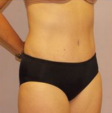 54-year-old tummy tuck after 1280234