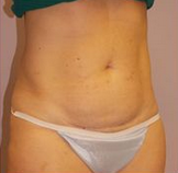 54-year-old tummy tuck before 1280234