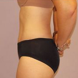 54-year-old tummy tuck 1280234