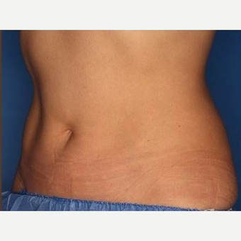 25-34 year old woman treated with CoolSculpting after 3711303