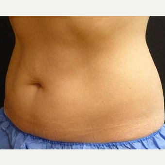 25-34 year old woman treated with CoolSculpting before 3711303