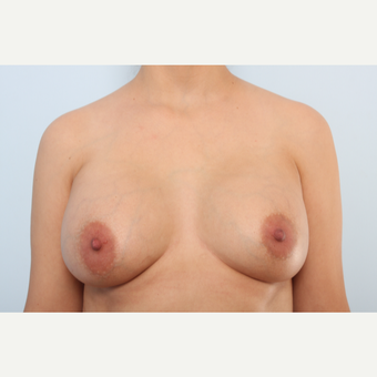 Breast Implant Exchange after 2966198