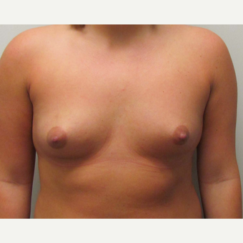 Breast Augmentation for this 21 Year Old Woman before 3005583