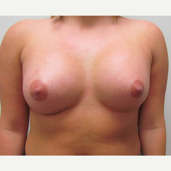 Breast Augmentation for this 21 Year Old Woman after 3005583