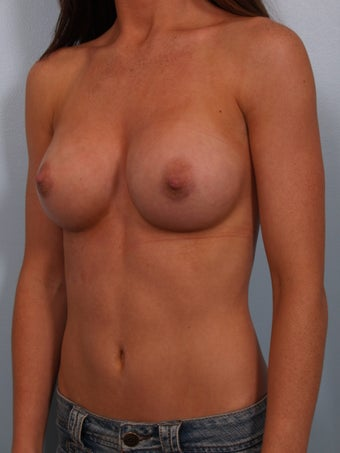 Breast Augmentation after 692777