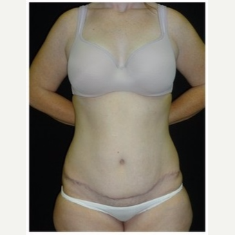 25-34 year old woman treated with Tummy Tuck after 3043430