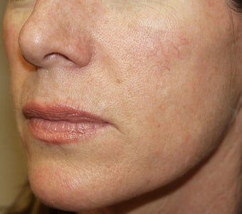 Radiesse to contour the mid-face in this 46 year old female
