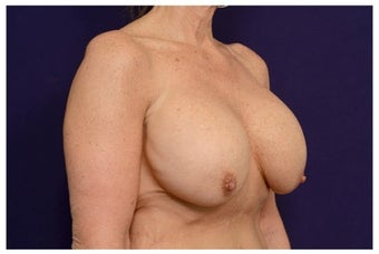 Breast Implants before 1517019