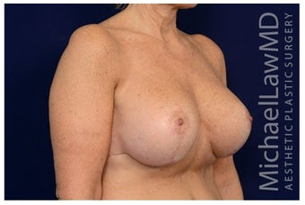 Breast Implants after 1517019