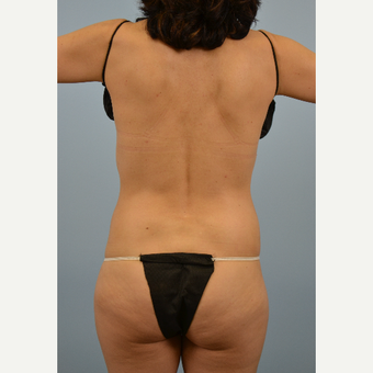49 year old woman treated with Vaser Liposuction before 2910864