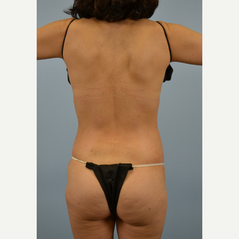 49 year old woman treated with Vaser Liposuction after 2910864