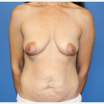 25-34 year old woman treated with Breast Lift with Implants before 3209125