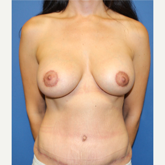 25-34 year old woman treated with Breast Lift with Implants after 3209125