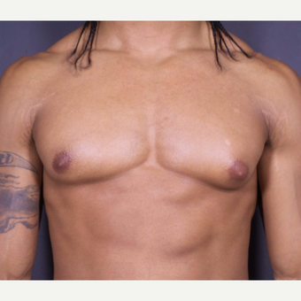 25-34 year old man treated with Male Breast Reduction before 3698231