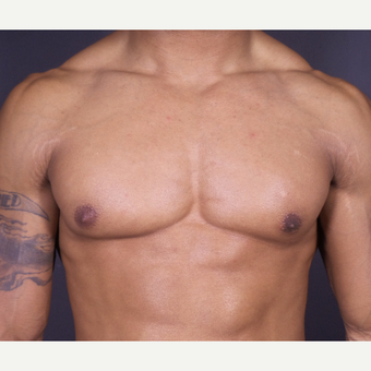 25-34 year old man treated with Male Breast Reduction after 3698231