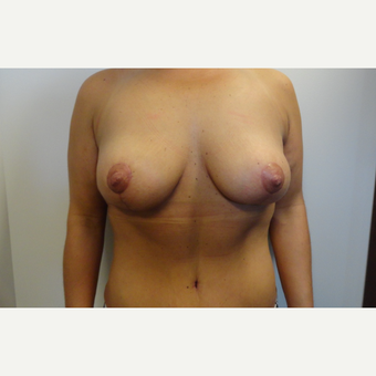 35-44 year old woman treated with Mommy Makeover after 3225188