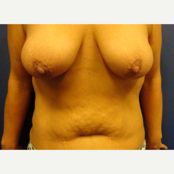 35-44 year old woman treated with Mommy Makeover before 3225188