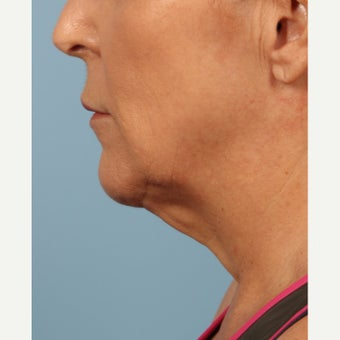 55-64 year old woman treated with Kybella after 2081062