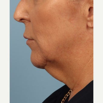 55-64 year old woman treated with Kybella before 2081062