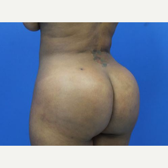 35-44 year old woman treated with Brazilian Butt Lift Brazilian Butt Lift with full body liposuction. 44 years old Patient.