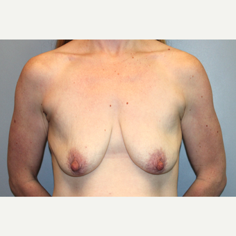 35-44 year old woman treated with Mommy Makeover before 3588691