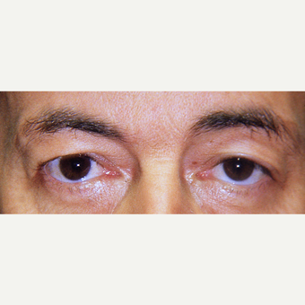 45-54 year old man treated with Eyelid Surgery before 3441118