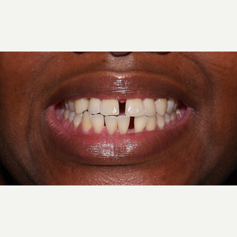 35-44 year old woman treated with Invisalign before 3126744