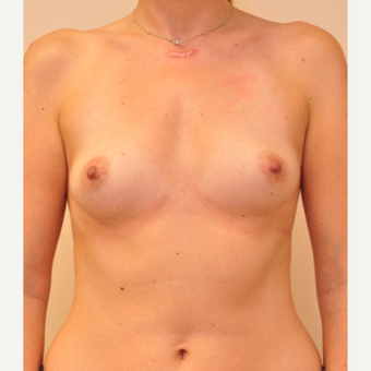 25-34 year old woman treated with Breast Implants before 3855076
