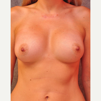 25-34 year old woman treated with Breast Implants after 3855076