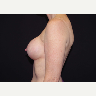 55-64 year old woman treated with Breast Implants before 3441692