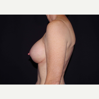 55-64 year old woman treated with Breast Implants after 3441692