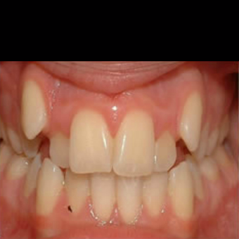 35-44 year old woman treated with clear teeth aligners OrthoSnap.