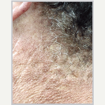 45-54 year old man treated with Laser Peel