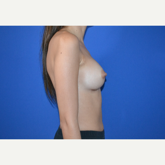 25-34 year old woman treated with Breast Augmentation after 3334705