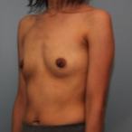 26 year old has breast augmentation 385cc Inspira Silicone Breast Implants before 3544191