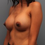 26 year old has breast augmentation 385cc Inspira Silicone Breast Implants after 3544191