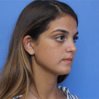 18-24 year old woman treated with Rhinoplasty after 3377737