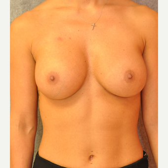 25-34 year old woman treated with Breast Augmentation after 3842345